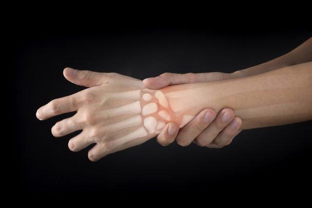 Rheumatoid Arthritis, RA, gut bacteria, autoimmune disease